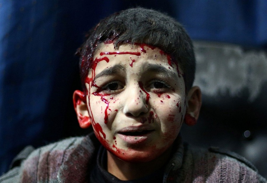 20 Кровь и боль. Автор фото: Нермеш Сингх Гурдиб Сингх.